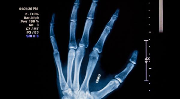 implant-puce-main